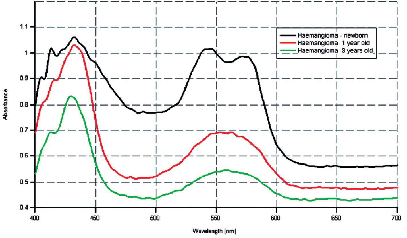 Spektrálne krivky u pacienta s hemangiómom v regresii.