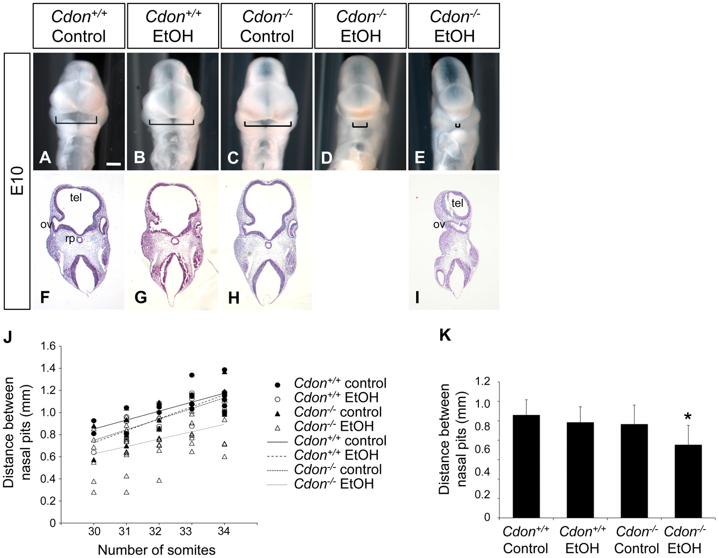 Synergy between loss of <i>Cdon</i> and fetal ethanol exposure produces HPE: E10.0.