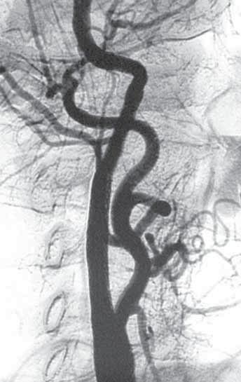 Angiogram původně stenotické karotické tepny po implantaci stentu.