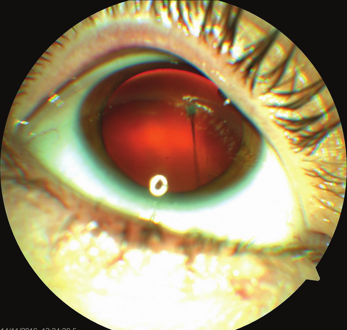 Barevný fotografický snímek předního segmentu pravého oka: perzistující arteria hyaloidea upínající se k zadní části pouzdra nitrooční čočky
