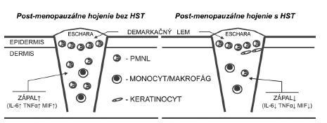 Hojenie rán v post-menopauzálnom období je charakteristické zvýšenou zápalovou reakciou organizmu, čo je založené na chýbajúcom inhibičnom efekte estrogénu na kľúčové zápalové faktory ako IL-6, TNF-α a MIF. HST inhibuje expresiu týchto mediátorov, a tým skracuje zápalovú fázu hojenia. HST – hormonálna substitučná terapia, IL-6 – interleukín 6, MIF – faktor inhibujúci migráciu makrofágov, TNF-α – tumor nekrotizujúci faktor alfa, PMNL – polymorfonukleárny leukocyt
