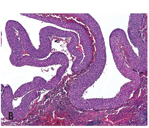 Fig. 9. Metastasis of squamous cell carcinoma of the tonsil. The lesion is cystically changed and surrounded by lymphatic tissue occasioning a resemblance to branchiogenic cyst (A). Cytologically it may look quite blandly and it can simulate an adnexal tumor cystic tumor (B) (magnification 20x and 100x, resp.).