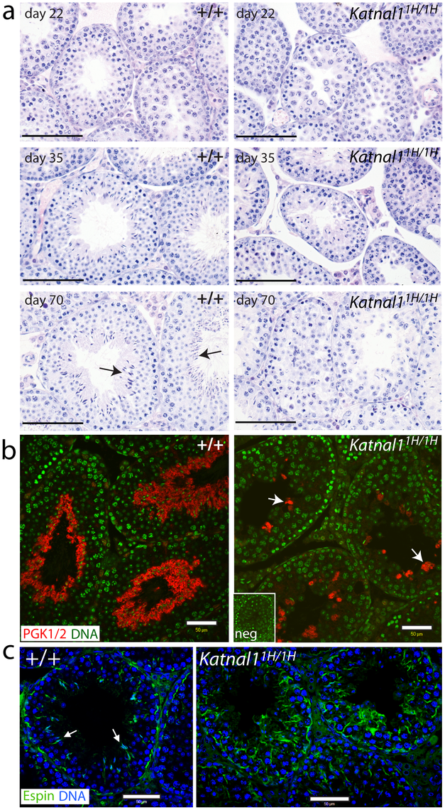 Histological analysis of testis sections reveals disruption to the seminiferous epithelium associated with a reduction in numbers of post-meiotic germ cells.