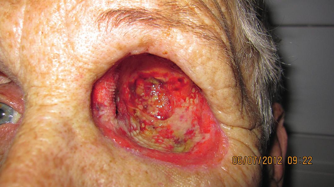 Dutina očnice s postupujúcou granuláciou