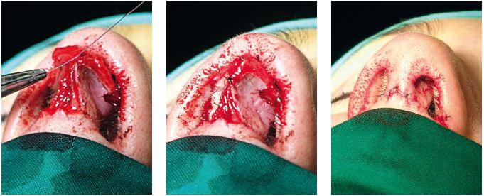Sutúra dómov interdomálna, sutúra transkolumelového rezu.