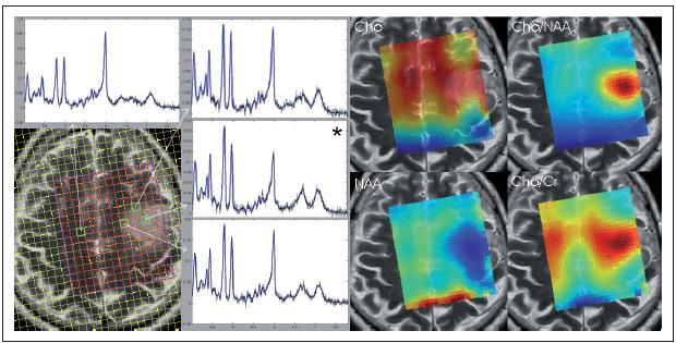 Obr. 2. 1H MRS spektra a spektroskopické mapy pacienta s tumorem naměřená pomocí spektroskopického zobrazování při 3T. Sekvence PRESS-SI, TR/TE/NA = 1 510 ms/30 ms/4. Spektrum označené hvězdičkou odpovídá místu, ze kterého byla provedena stereotaktická biopsie (Oligodendrogliom GII). Nahoře vlevo spektrum z normálně vypadající bílé hmoty, další spektra z různých míst léze. Vpravo metabolické mapy: cholinových sloučenin, NAA a poměrů Cho/NAA a Cho/Cr.