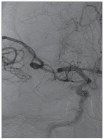 Obr. 1e. Po rozpětí stentu je ihned obnovena částečná perfuze střední mozkové tepny. Stent byl následně vtažen z 30 % zpět do mikrokatétru. Spolu se zachyceným embolem byl pak zčásti rozepjatý stent stažen do vodicího katétru. Konec vodicího katétru byl umístěn kraniálně od implantovaného stentu v extrakraniální bifurkaci karotické tepny tak, aby nedošlo ke kontaktu extrahovaného stentu se stentem implantovaným ve vnitřní karotické tepně.  Intervenční výkon trval 1 hod a 20 min