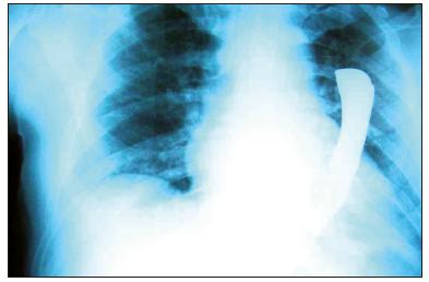 RTG hrudníku téhož pacienta