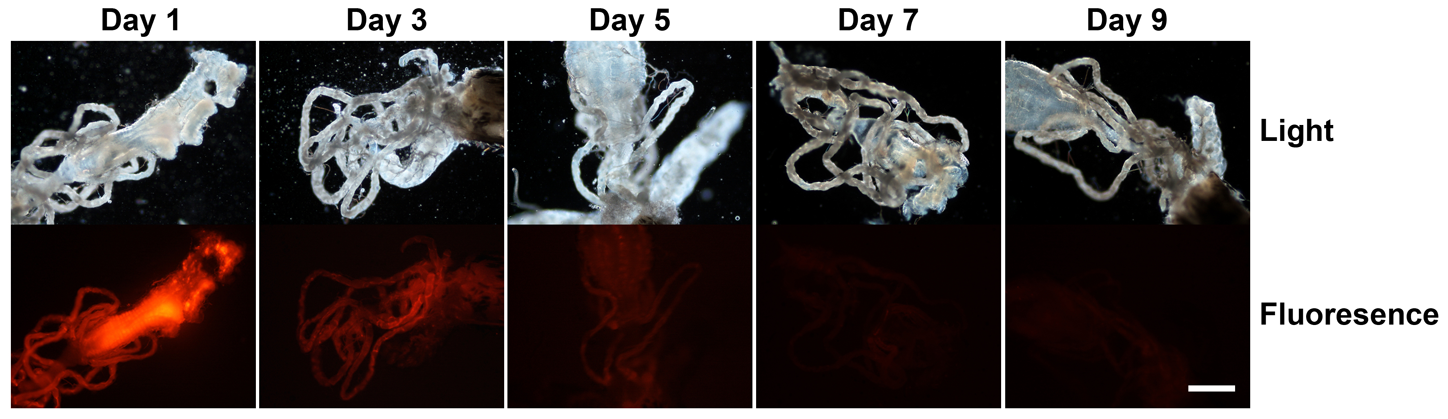 Dissemination and persistence of intrathoracically injected Cy 3-labelled <i>Brugia malayi</i> Cathepsin-L1 siRNAs in <i>Aedes aegypti</i>.
