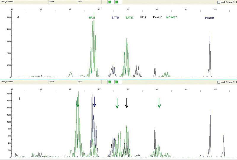 Mikrosatelitní nestabilita detekovaná pomocí PCR: pět mononukleotidových repetic (NR21, BAT26, BAT25, NR24, MONO27) v nenádorové tkáni a dvě kontrolní pentanukleotidové repetice (A); kolorektální nádorová tkáň téhož pacienta vykazující MSI-H všech 5 mononukleotidových repetic (B)