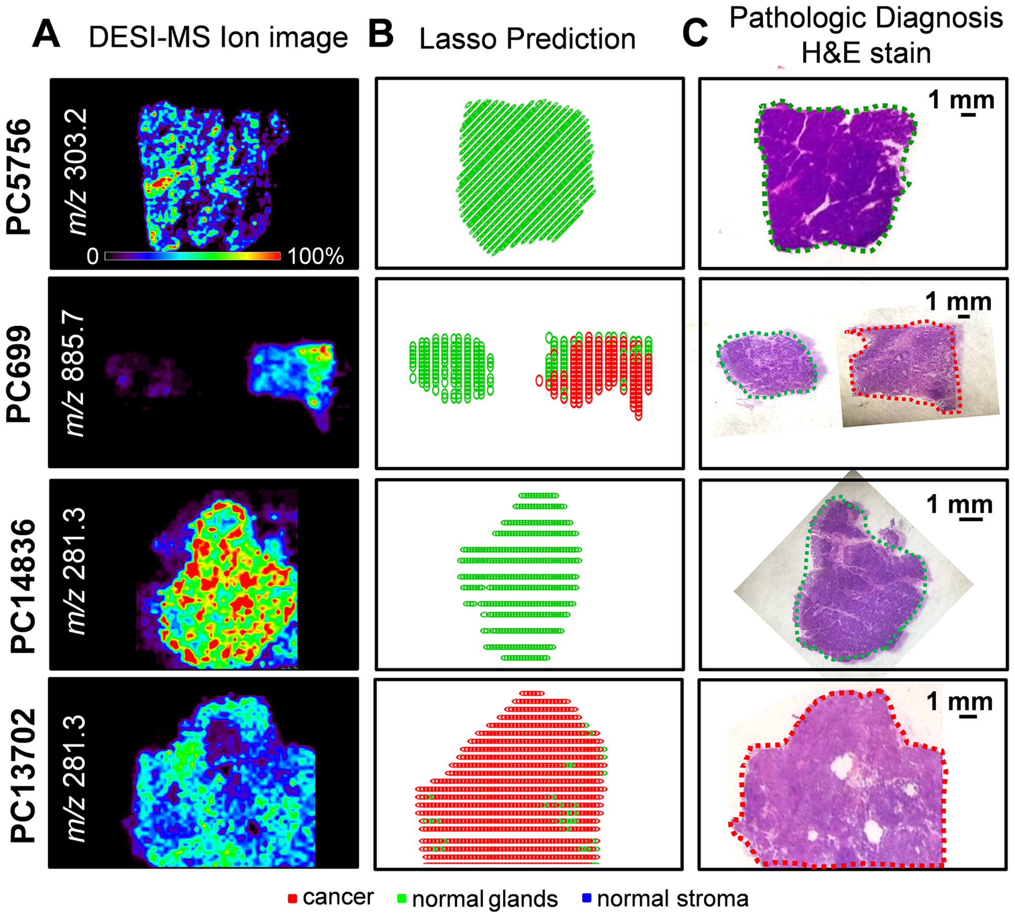Selected DESI-MSI ion image and Lasso prediction results obtained for training samples PC5756 and PC699 and validation samples PC14836 and PC13702.
