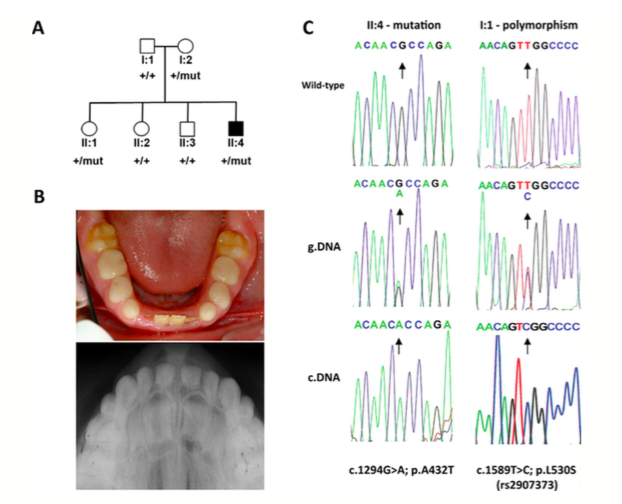 Figure 1.  Dental phenotype and genetic analysis of Family 1. (A) Pedigree of Family 1 showing affected (shaded) and unaffected (unshaded) members of the family. The segregation of the wild-type (+) and missense variant (c.1294G>A, NM_017565.3) p.A432T (mut) is shown below each family member. (B) Photograph (top) and dental X-ray (bottom) showing the hypoplastic enamel phenotype of individual II:4. (C) Sequence electropherograms from the affected individual (II:4) showing the wild-type allele (top), c.1294G>A mutation in genomic DNA (center) and in the cDNA (bottom). The mutation is heterozygous in gDNA but homozygous in the cDNA suggesting the wild-type allele is not transcribed. Sequencing of the FAM20A polymorphism (c.1589T>C, NM_017565.3; p.L530S) in the unaffected father (I:1), who does not carry the c.1294A>G mutation, also showed it to be heterozygous in the genomic DNA (center) but homozygous in the cDNA (bottom), which is consistent with one the allele not being transcribed.