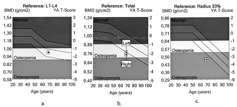 Denzita kostního minerálu (BMD) stanovená dvouenergiovou rentgenovou absorpciometrií (kostní denzitometrie) a. BMD a T-skóre v oblasti bederní páteře (L1-L4) b. BMD a T-skóre v oblasti proximálního femuru (Total) c. BMD a T-skóre v oblasti distální třetiny předloktí (Radius 33%)