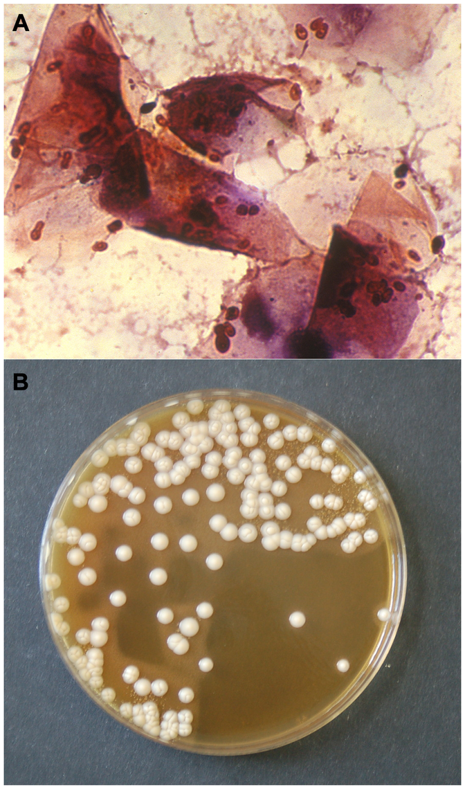 Gram stain of a smear (A) and culture (B) from an otic swab of a dog with otitis externa, showing numerous <i>M. pachydermatis</i> cells (A) and colonies (B).
