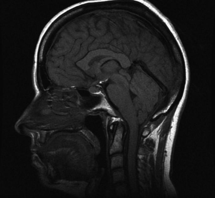 Obr. 2b. T1w: (T1 vážený obrázek), sagitální rovina. Kaudální přesah mozečkových tonzil pod úroveň foramen magnum, kraniálně konvexní ohraničení hypofýzy a deprese optického chiasmatu.