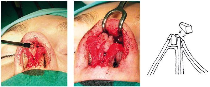 Rozširovací štep (spreader graft). Vpravo vloženie chrupkového štepu vľavo medzi septum a laterálnu chrupku, v strede: vloženie štepu obojstranne. Vpravo: schéma podstaty operácie.