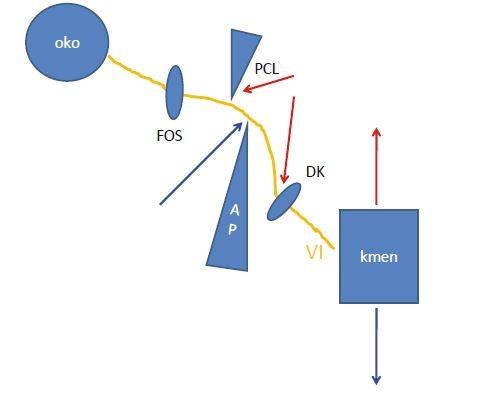 Schéma možností poškození nervus abducens při úrazu krční páteře během jeho průběhu. Červené šipky znázorňují hyperextenční poranění, modré šipky hyperflekční poranění. VI – nervus abducens; AP – apex pyramidy; DK – Dorellův kanál; FOS – fissura orbitalis superior, PCL – petroklinoidní ligamentum<br> Fig. 2. Diagram of possible damage of the abducens nerve during cervical spinal injury during its course. Red arrows show hyperextension injury, and blue arrows show hyperfl ective injury. VI – abducens nerve; AP – petrous apex; DK – Dorello´s canal; FOS – superior orbital fi ssure; PCL – petroclinoid ligament