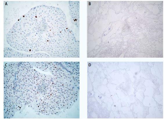 Low-grade uroteliální karcinom, imunochemické vyšetření markeru Ki-67 ve tkáni (A) a v cytobloku (B) a markeru p53 ve tkáni (C) a v cytobloku (D), zvětšení 400×<br> Fig. 1. Low-grade urothelial carcinoma, expression of Ki-67 in tissue section (A) and in cell block section (B) and expression of p53 in tissue section (C) and in cell block section (D), magnification 400×