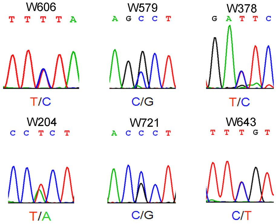Electropherogram showing single-nucleotide mutation of <i>WT1</i> in patients with non-obstructive azoospermia.