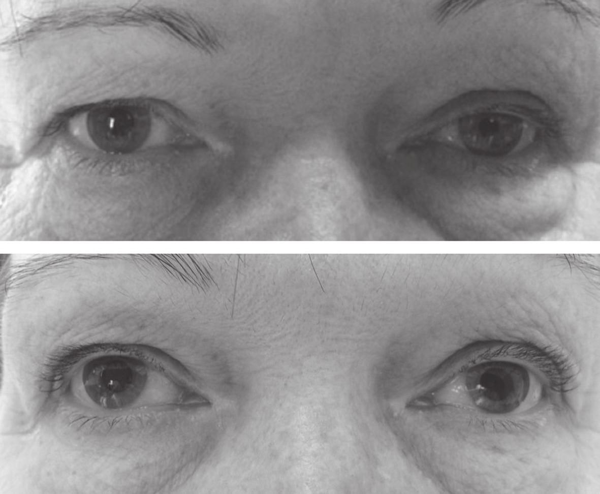 Průměr zornice pravého oka byl před aplikací 1% fenylefrinu 5 mm, levého oka 3 mm (nahoře). Hodinu po aplikaci 1% fenylefrinu se průměr zornice pravého oka nezměnil, na levém oku se zornice rozšířila a rovněž se zlepšil pokles horního víčka vlevo (dole). Výsledek testu ukázal na postganglionární lézi sympatiku vlevo