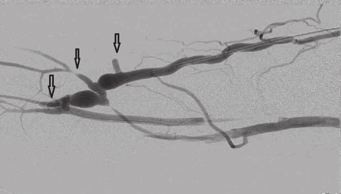 Fistulografie po podvazu 3 kolaterálních žil, šipky