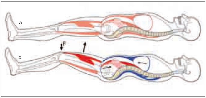 Obr. 1a, b. a) Klidový stav v poloze vleže. b) Flexe DKK proti gravitaci. Vedle flexorů kyčelních kloubů (znázorněny červeně) provádějících vlastní flexi se aktivují svaly (znázorněny modře) stabilizující jejich začátky, tj. pánev a bederní páteř. Stabilizační funkce svalů za fyziologické situace znemožní pohyb a vychýlení bederních segmentů z neutrálního postavení.