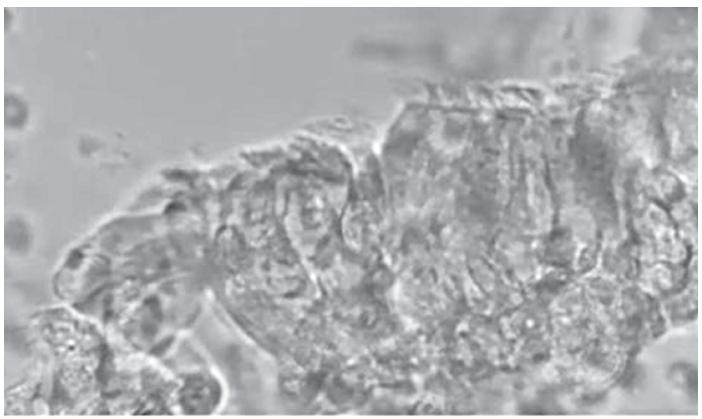 Statický obraz získaný při HSVM. Fig. 2. Still image obtained at HSVM.