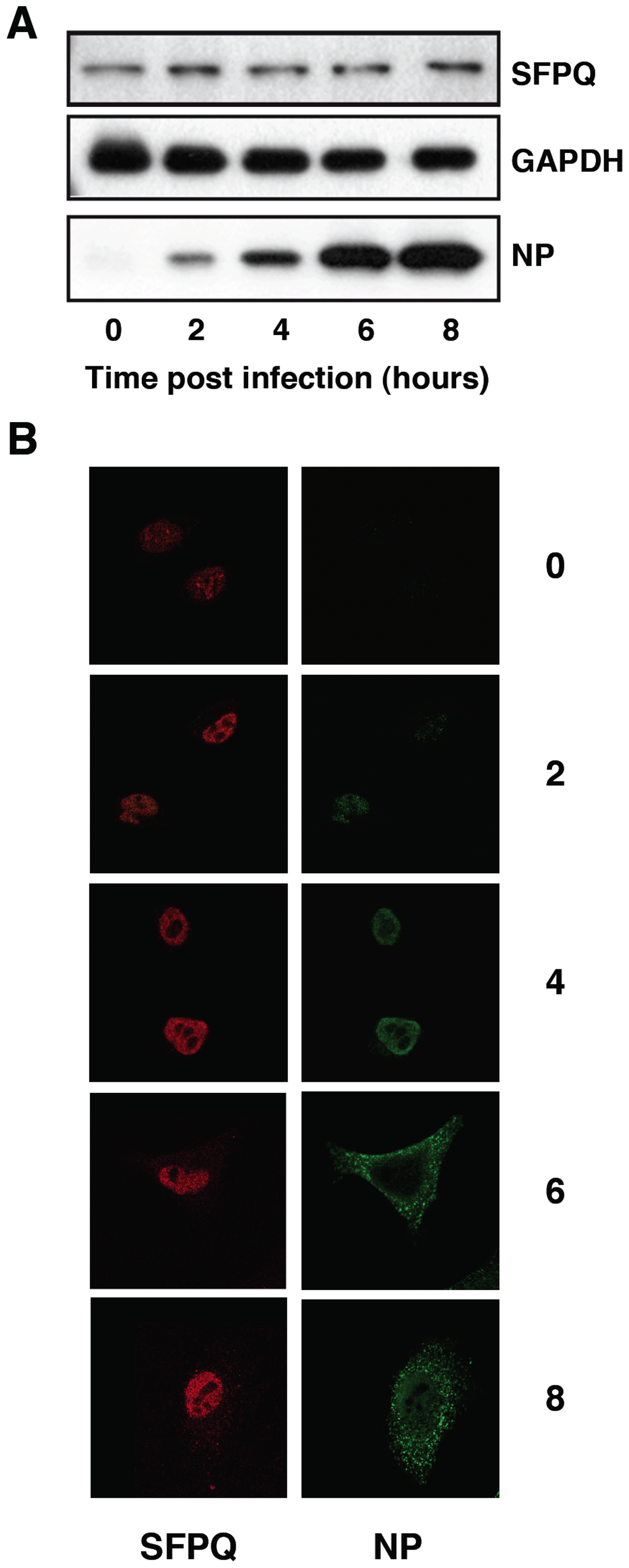 Accumulation and localisation of SFPQ/PSF in influenza virus infected cells.