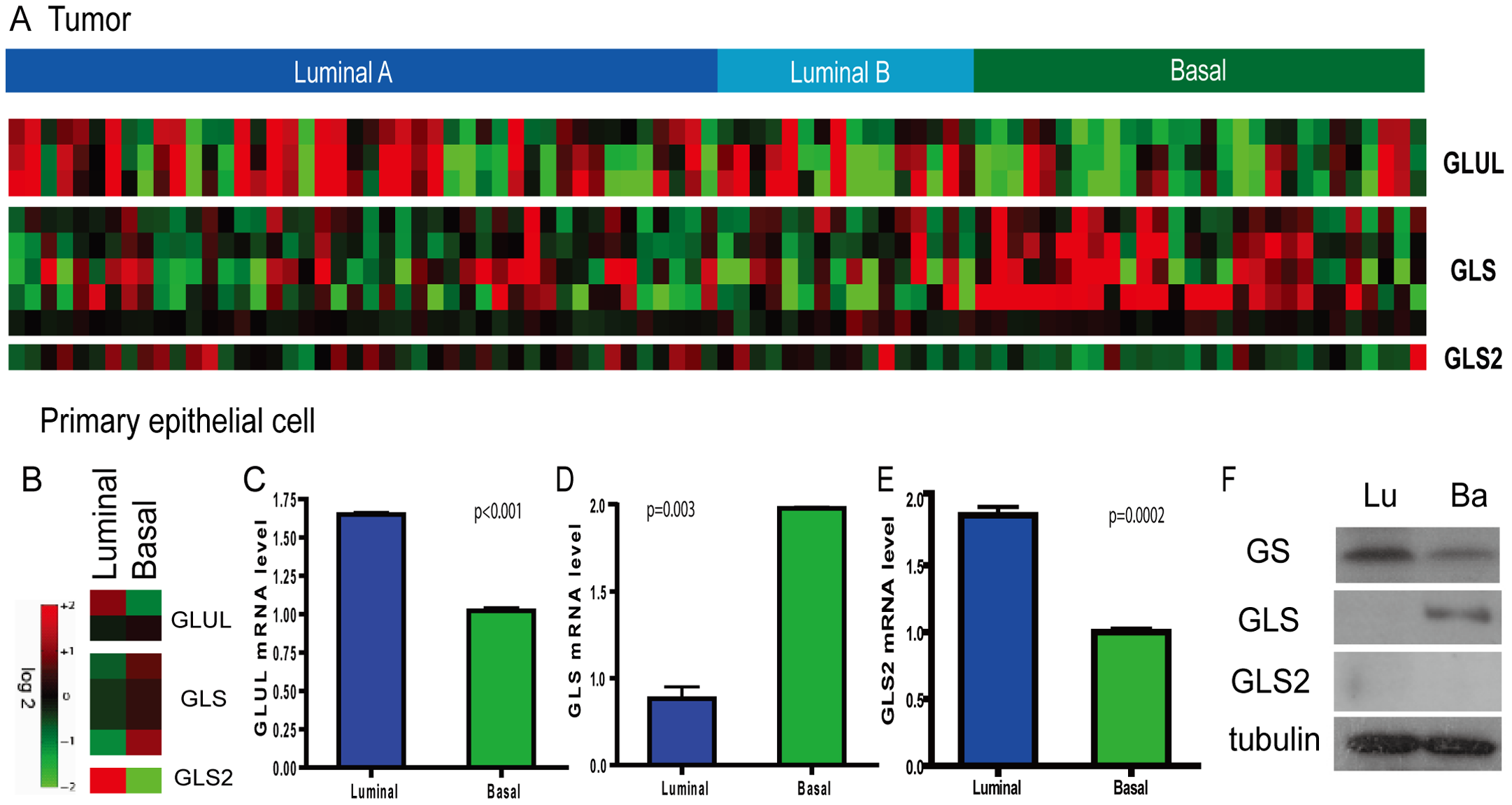 Persistent differential expression of genes encoding glutamine-metabolizing enzymes in the basal and luminal breast tumors and primary epithelial cells.