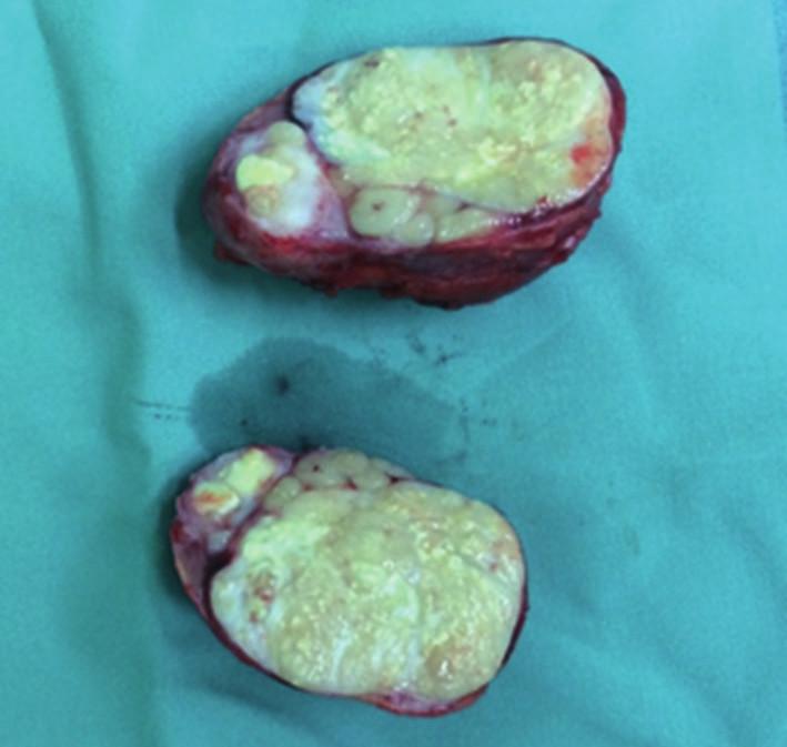 Lymfatická metastáza primárního tumoru Fig. 6: Lymphatic metastasis of the primary tumour