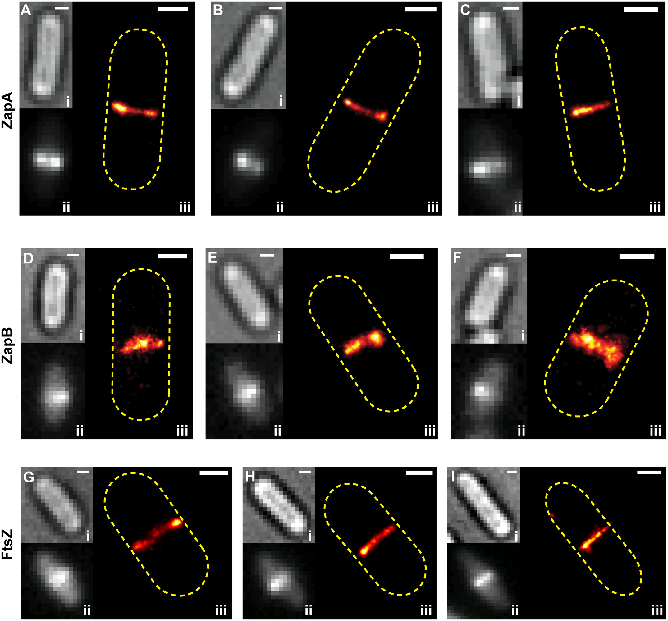 Live-cell PALM imaging of band-like ZapA, ZapB and FtsZ structures.