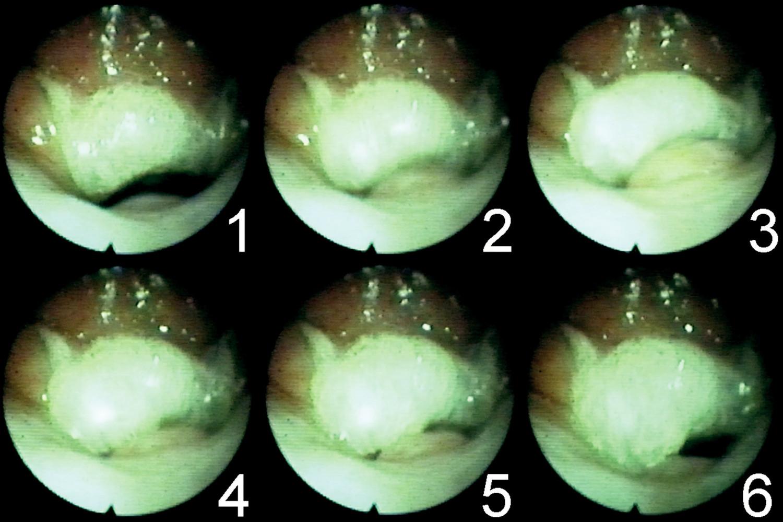 Série snímků zachycující mechanismus velofaryngeálního uzávěru.