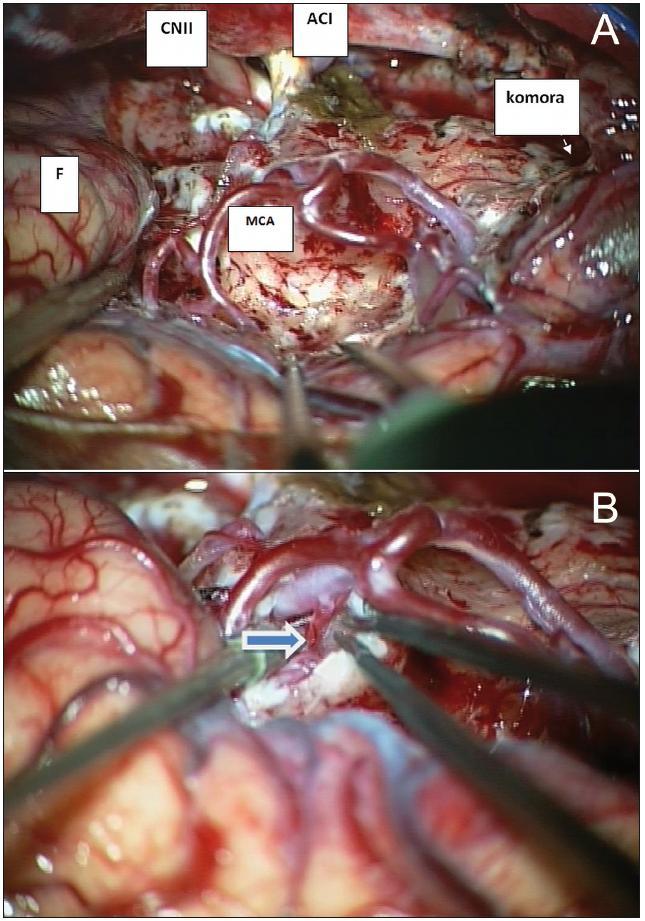 A. Ozřejmení základních anatomických struktur během resekce insulárního gliomu Yaşargilova typu 5B. B. Odstup LLsA vypreparovaný během resekce inzulárního gliomu (šipka). F: frontální lalok; MCA: větvení arteria cerebri media; CN II: nervus opticus; ACI: arteria cerebri interna; komora: temporální roh postranní komory (meziotemporální struktury a temporální lalok resekovány)