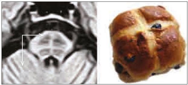 """Hot cross bun sign (""""velikonoční jidášek""""). Šipky (horizontální a vertikální) ukazují atrofii pontu a mozečku."""