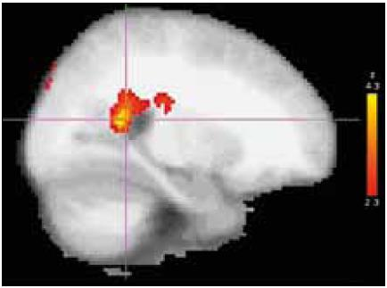 Fig. 2. BoNT treatment effect in group A: location, posterior cingulate/precuneus region of the most significant decrease of activation after BoNT treatment (group post-hoc contrast overlaid on an MNI anatomical template).