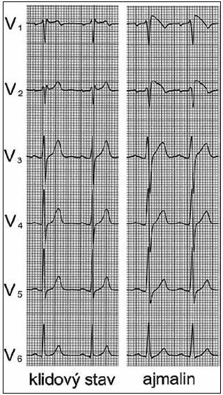 Ukázkové EKG pacienta se sedlovitým uspořádáním elevace ST ve svodech V<sub>1</sub> a V<sub>2</sub> v klidovém stavu, které se po aplikaci ajmalinu změnilo ve vyklenutý typ. S dovolením převzato z citace [73].