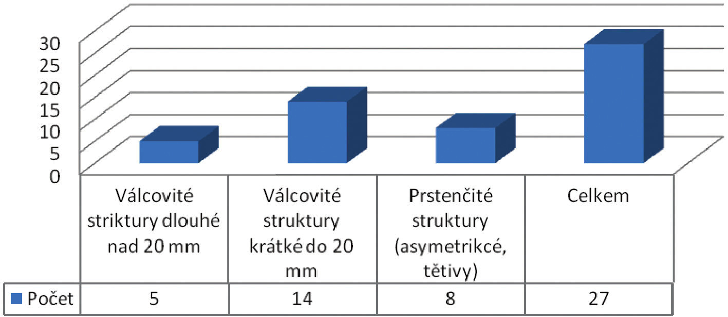 Typy diagnostikovaných striktur kolorektální anastomózy ( N=27)