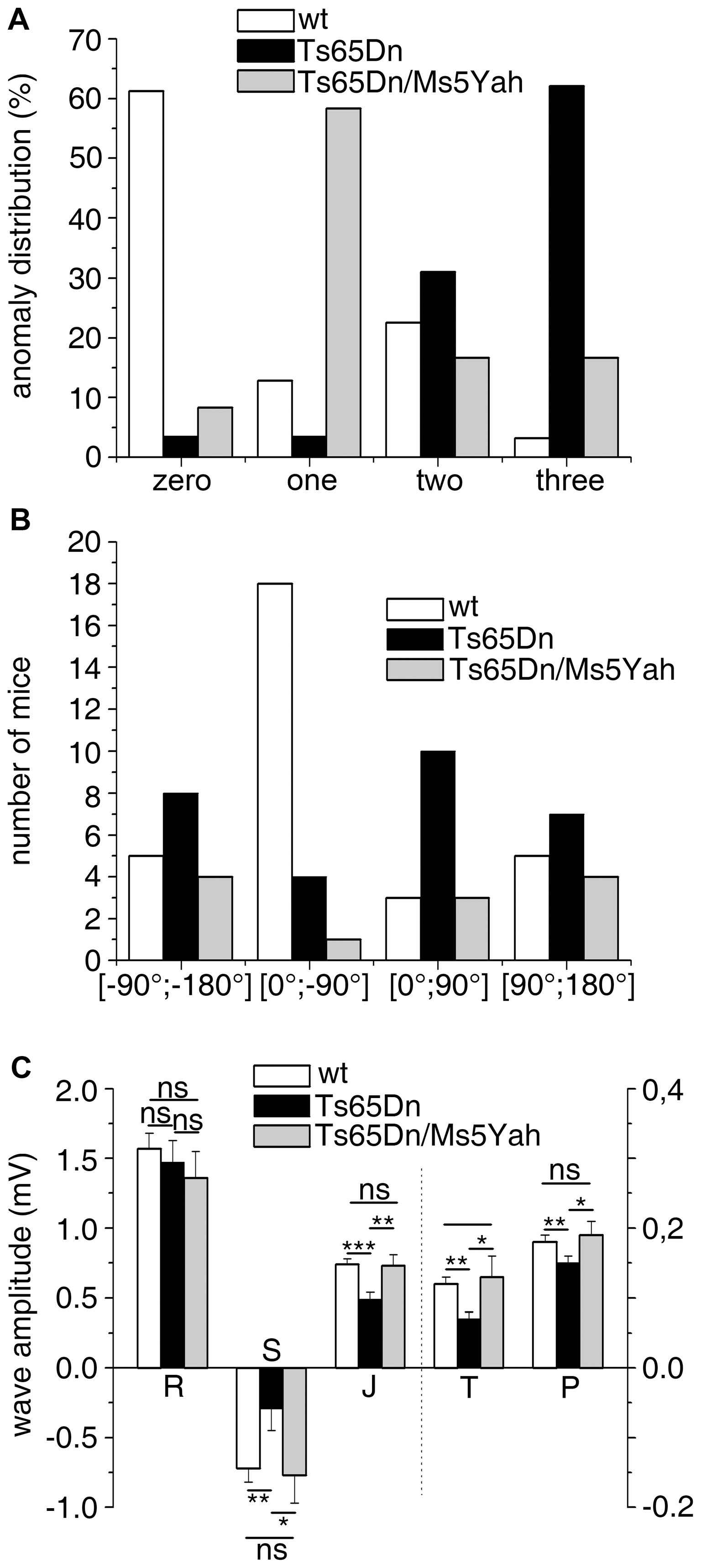 Partial rescue of ECG features in Ts65Dn/Ms5Yah compound mice.