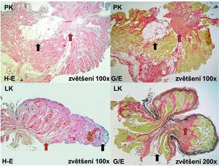 Histologické nálezy u pacienta s arytmogenní kardiomyopatií levé komory odebrané  z postižené mezikomorové přepážky