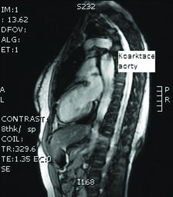 MRI hrudní aorty – koarktace aorty nově diagnostikovaná u 29leté pacientky před IVF (archiv autorů).