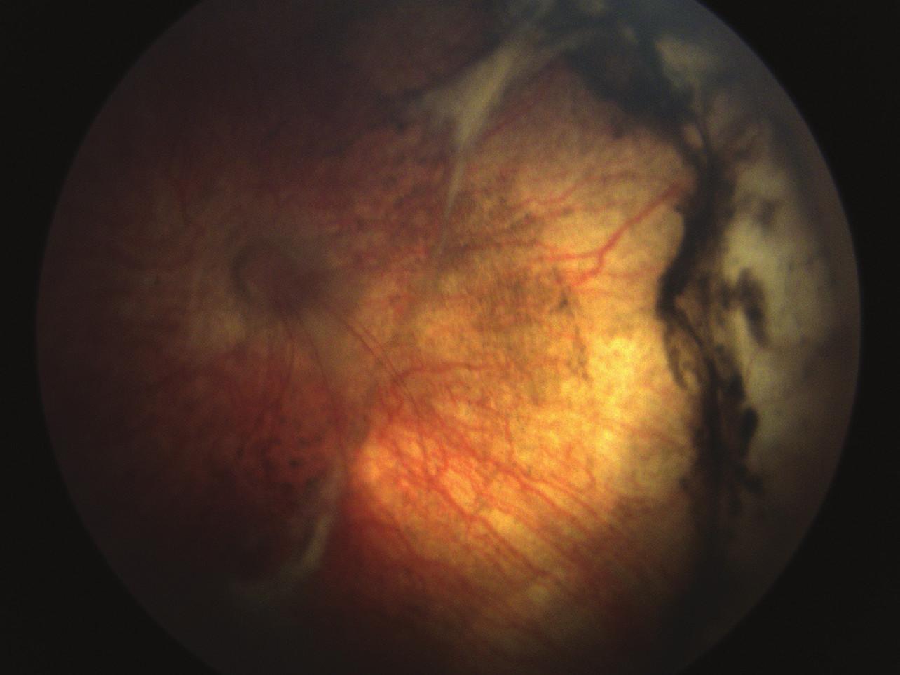 Barevné foto pravého oka v pooperačním období