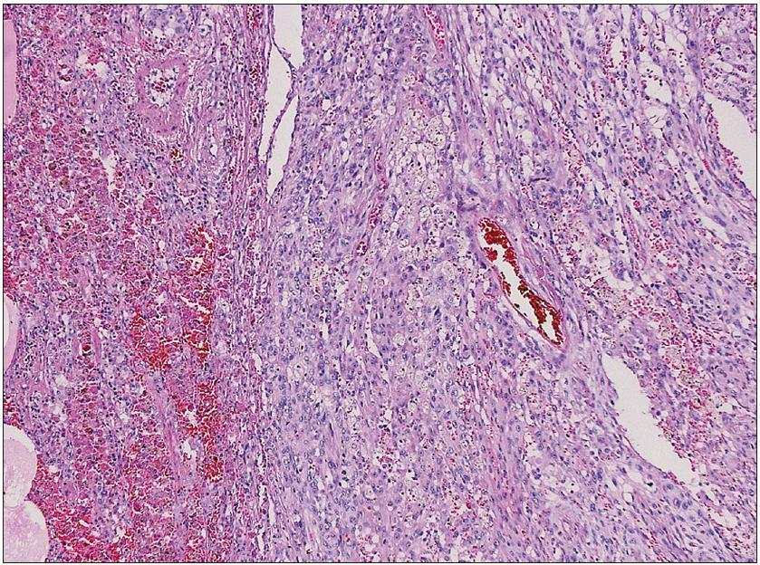 Struktura prokrvácené plicní tkáně s ložiskem nádoru epiteloidního vzhledu Nádorové elementy jsou negativní v průkazu pancytokeratinů, TTF1 a PR. Silná je exprese vimentinu a fokálně EMA, proliferační aktivita KI67 je 25 %. Morfologie i imunohistochemie odpovídají obrazu metastázy anaplastického meningeomu. Barvení hematoxylin eozinem.