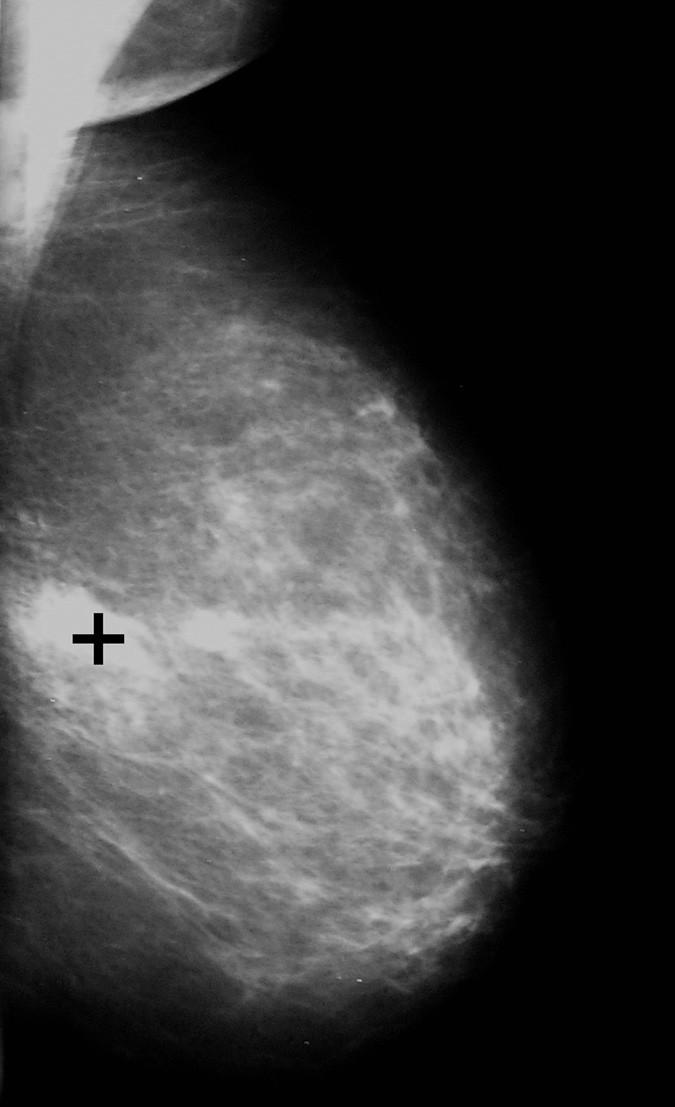 Mamografický snímek levého prsu v mediolaterální šikmé projekci s ložiskem duktálního invazivního karcinomu, které je označeno černým křížkem (stejná pacientka jako na obrázku 6, kde je přítomna neovaskularizace k tomuto malignímu nádoru)