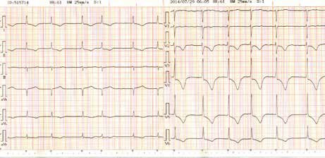 EKG 5. den hospitalizace