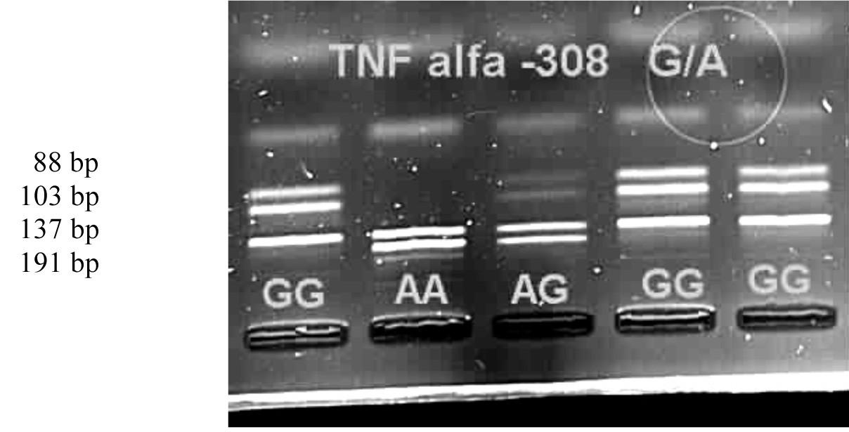 Genotypy polymorfismu -308 G/A na elektroforetickém gelu v UV světle.