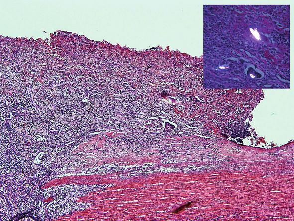 Oblasť endotelu aorty v blízkosti perforácie s prítomnosťou mnohojadrových buniek z cudzích telies obsahujúcich dvojlomný materiál (vložený obrázok) (hematoxylín-eozín, zväčšenie 100x).