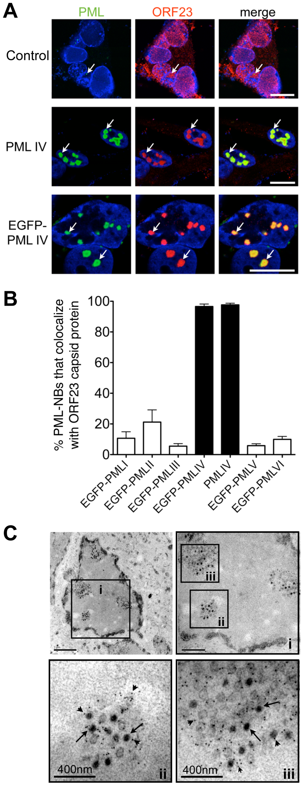 PML IV promotes the sequestration of VZV nucleocapsids within PML cages.