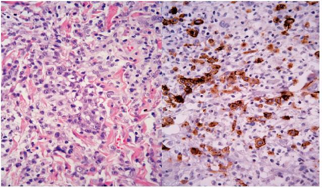 Mezi malými lymfocyty – vlevo lymfoidní elementy se středně velkým jádrem, s prominujícím jadérkem V centru obrázku je i jedna zachycená mitóza tohoto elementu (HE, původní zvětšení 400krát). Vpravo – lymfoidní elementy střední velikosti jsou CD30 pozitivní (IHC, původní zvětšení 400krát).