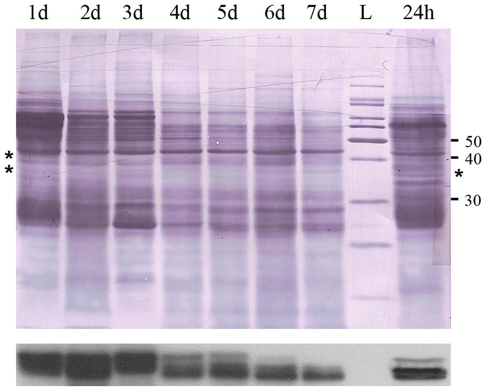 Immunoblot film lies below the nigrosine-stained PVDF.