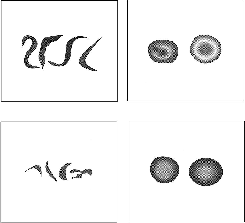 Tvary erytrocytů: a) srpkovité erytrocyty u srpkovité anemie; b) terčovité erytrocyty u talasémie; c) schistocyty u trombotické trombocytopenické purpury či diseminované intravaskulární koagulace; d) normální tvar erytrocytu.